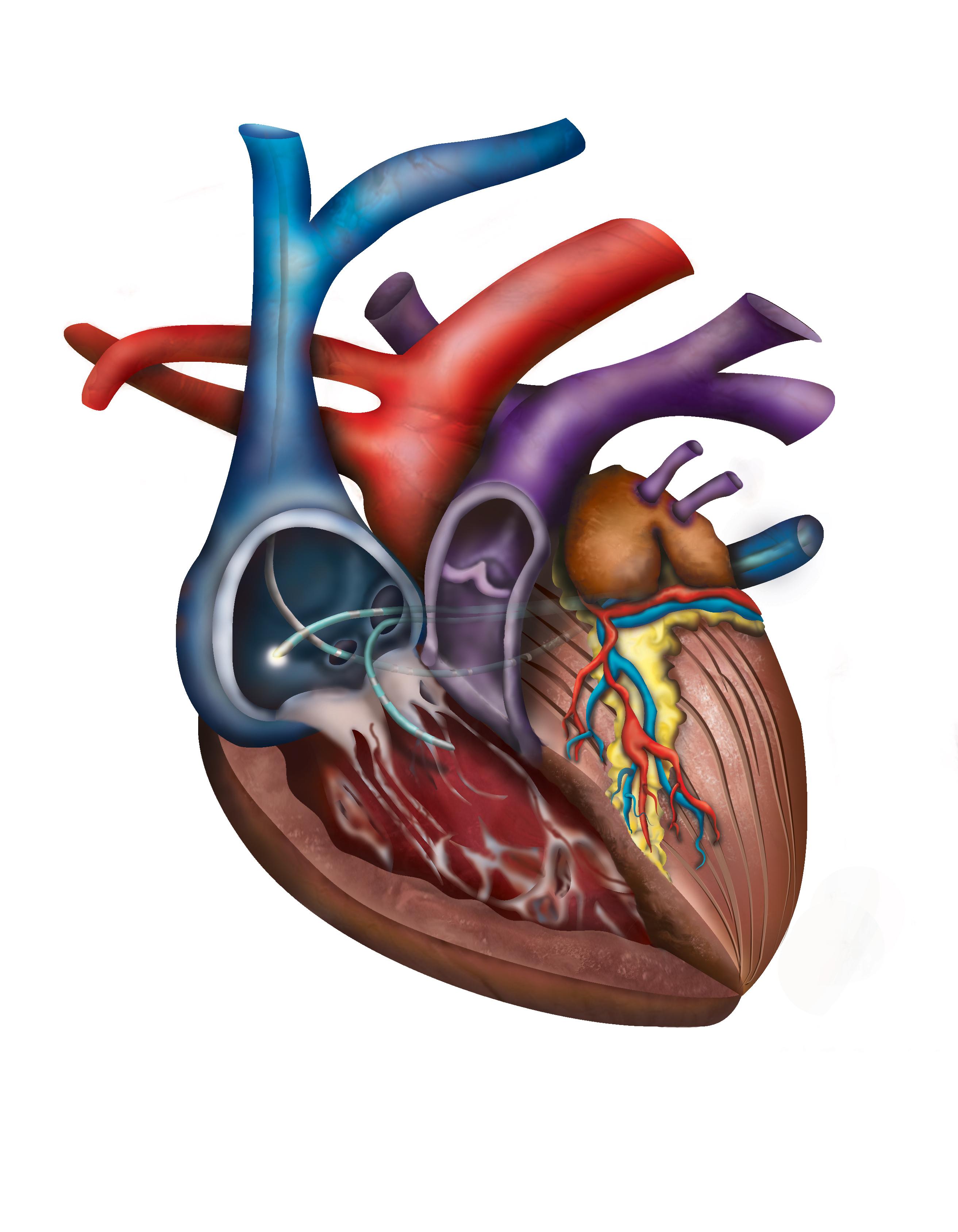 Canine Cardiac Ablation